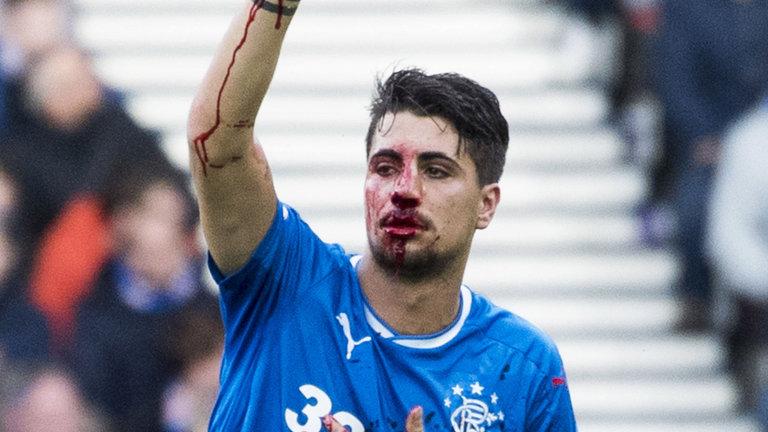 """Fun to watch him bleed"" – SPL opponent takes aim at ex-Rangers sttar"
